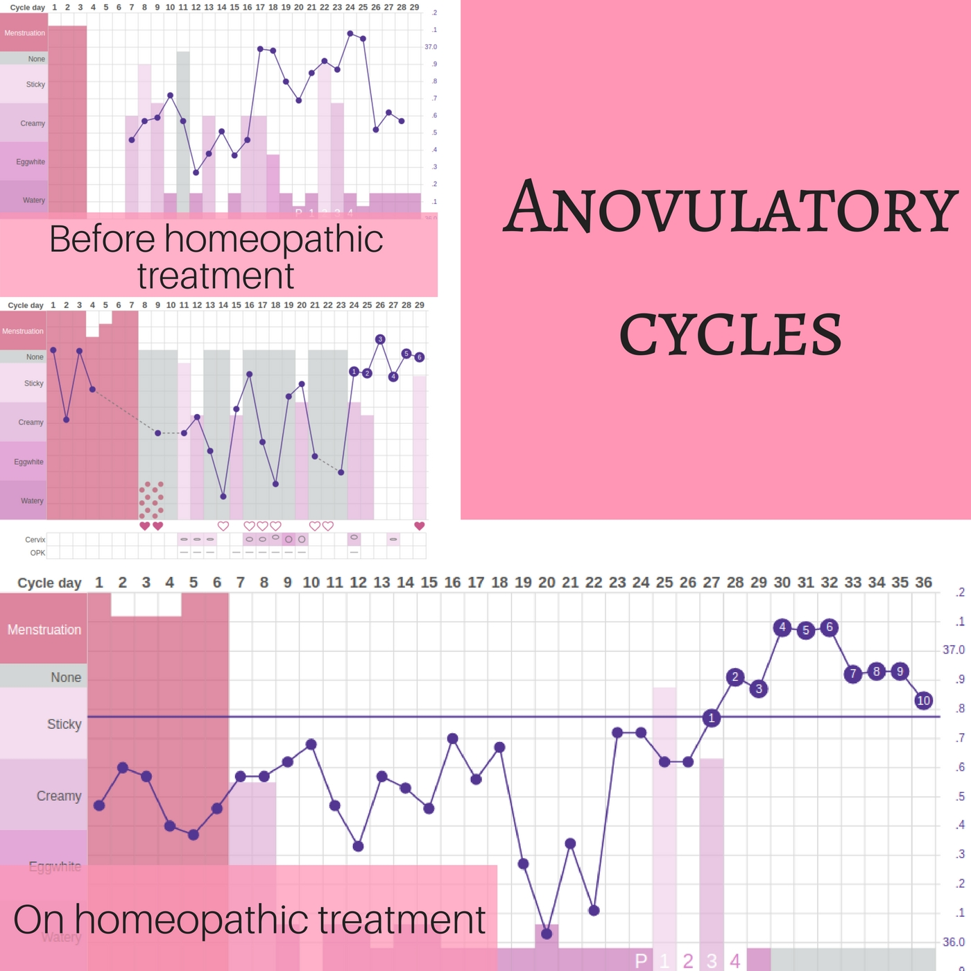 Anovulatory cycles